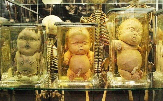 museos más extraños del mundo